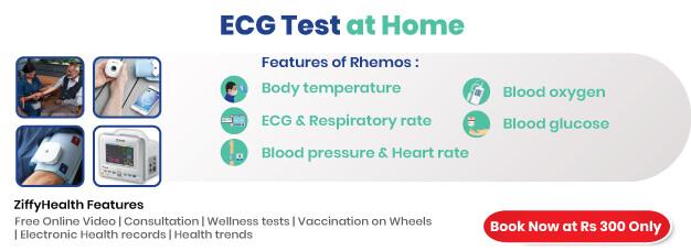 ECG-at-home